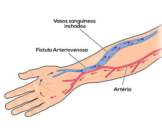 Fístulas Arteriovenosas