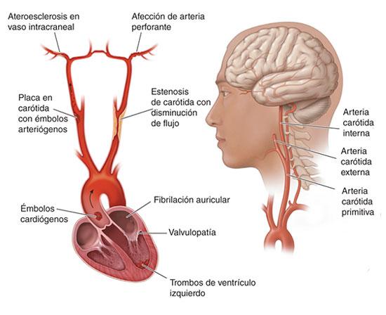 Insuficiencia Vascular Cerebral de Origen Extracraneal