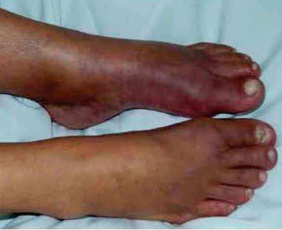 Isquemias Agudas de los Miembros por Embolia o Trombosis