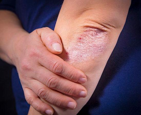 Enfermedades de los vasos linfáticos