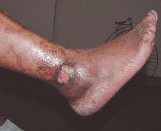 Úlceras de las Piernas